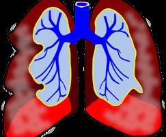 bronquitis enfermedad